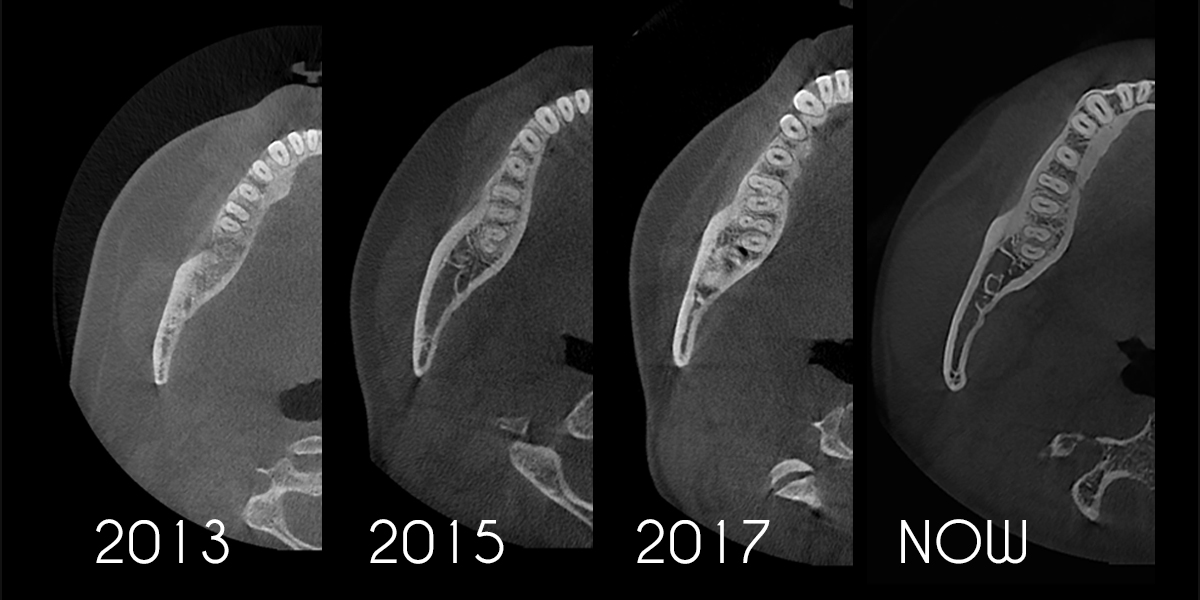 Image example of HDX Cyoptix imaging from 2013 until the present