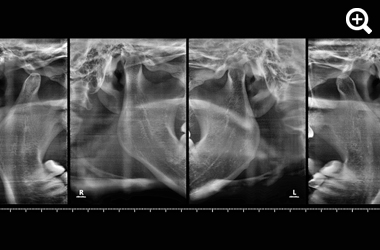 2D Radiographs TMJ image 1