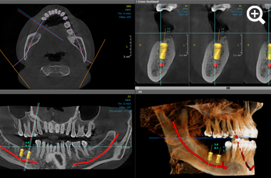 3D images Implantology thumbnail 1