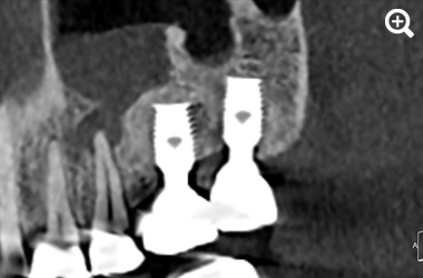 3D images Implantology thumbnail 4