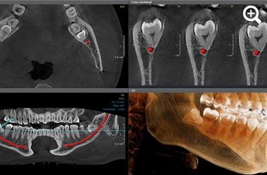 3D images oral surgery thumbnail 3