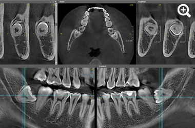 3D images oral surgery thumbnail 4